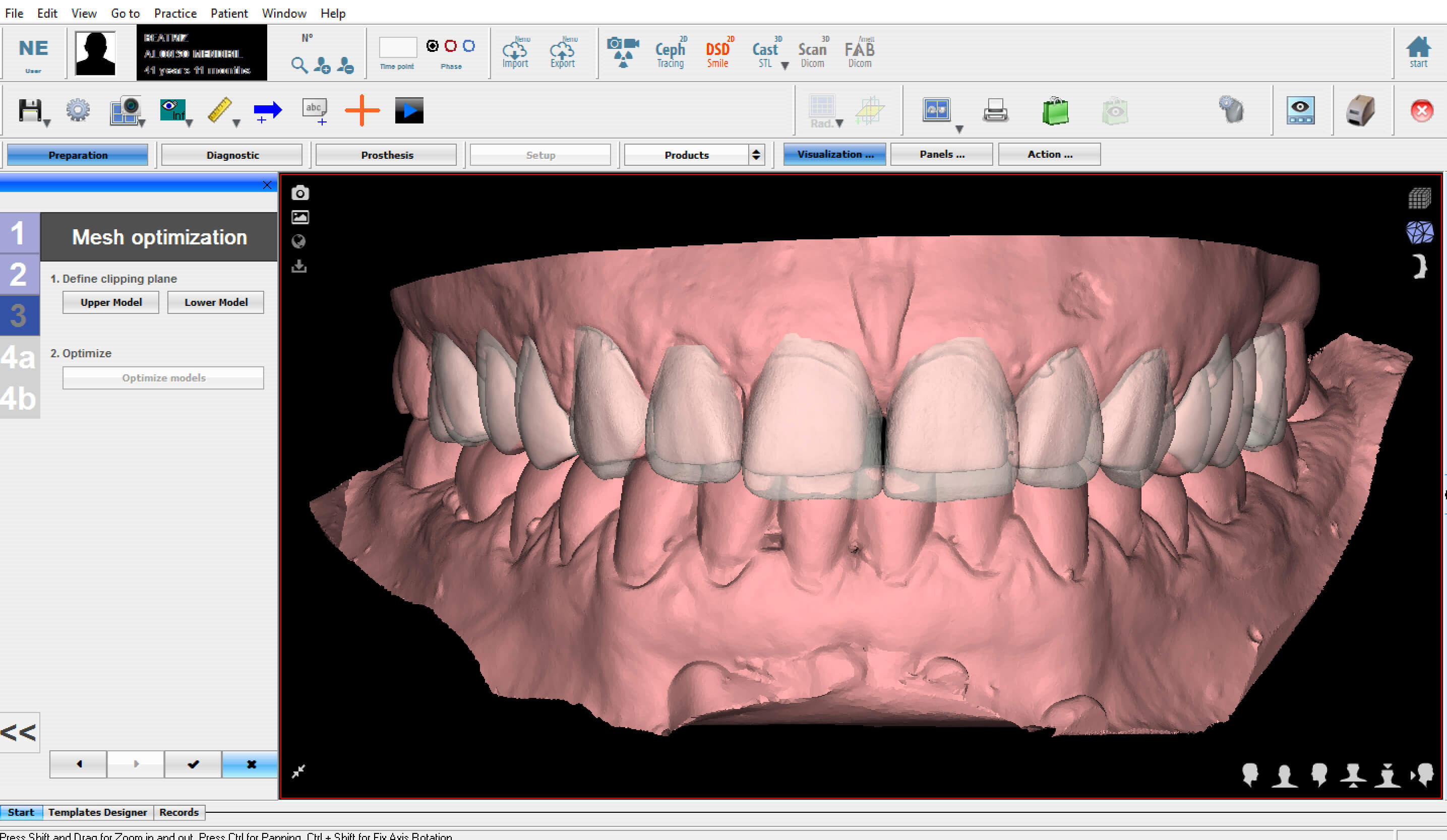Digital Smile Design Screenshot Software